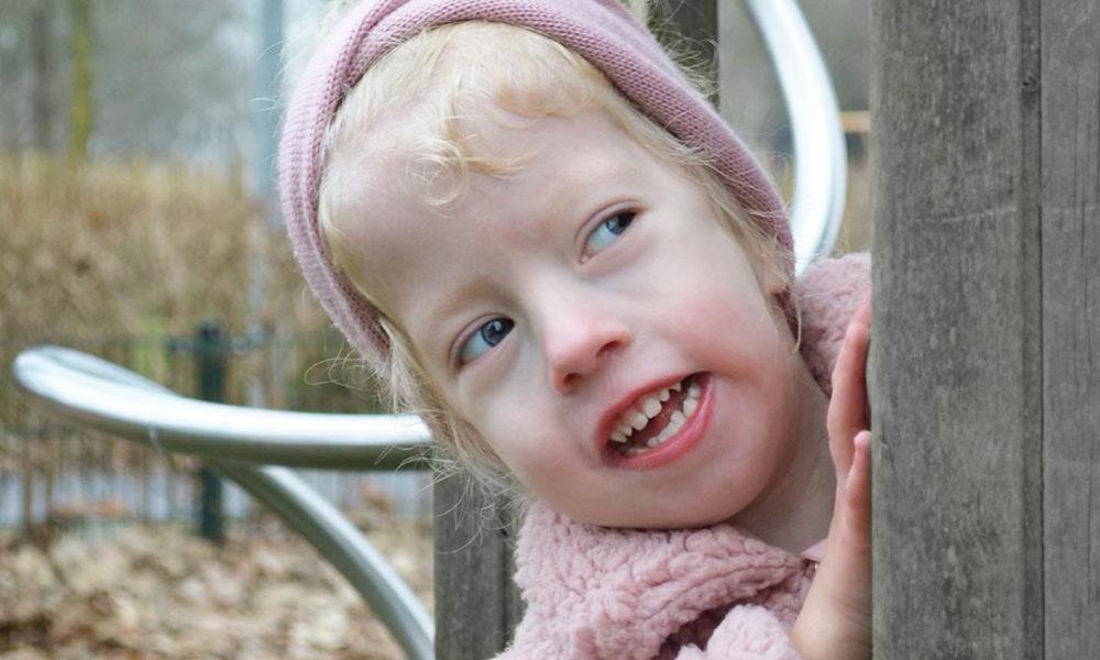 Lateral Meningocele Syndrome